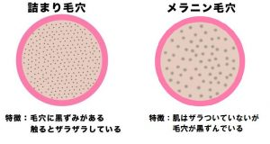 毛穴の黒ずみの種類