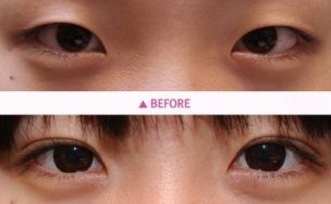 eyelid liposuction only fat double