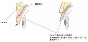 まぶたの脂肪吸引のみの手術方法